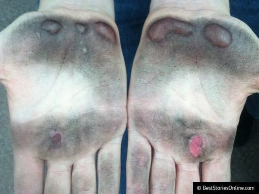 Pictured: After the exercise, a concerned friend posted pictures of a KMS Cosmetics employee's hands.